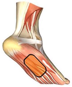 douleur plante de pied